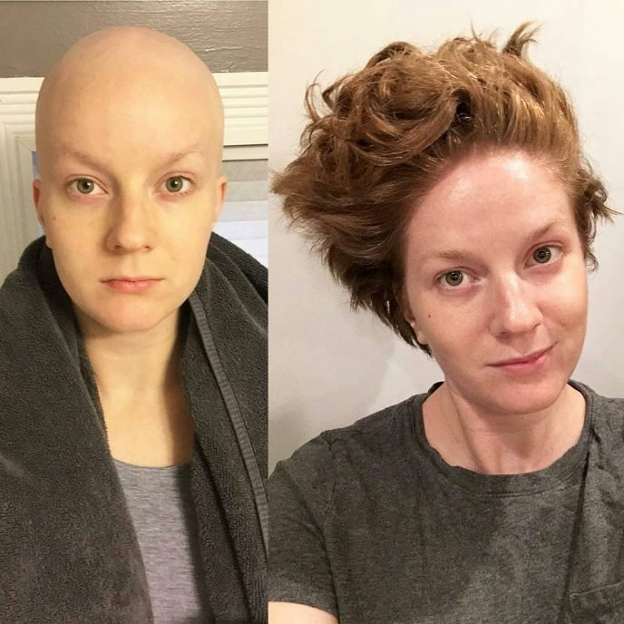 Они сказали нет смерти: 9 поразительных снимков людей, которым удалось победить рак