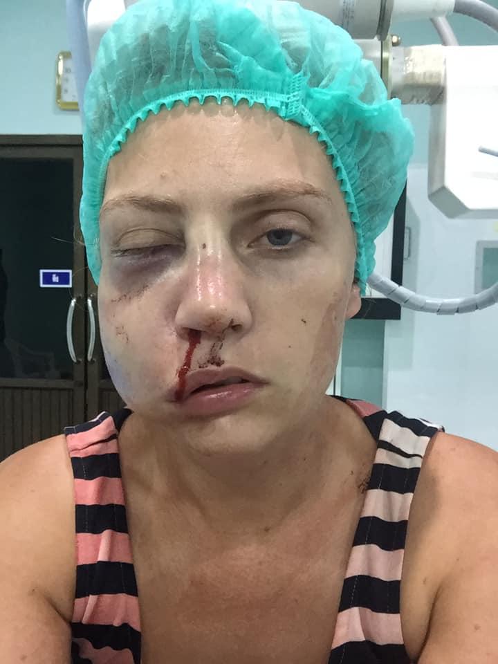 Муж изуродовал жену-модель на глазах у сына во время отдыха в Таиланде