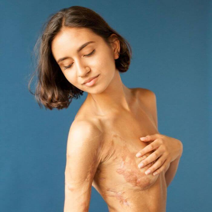 Photographer Captures People And Their Unique Scars In An Inspiring 'Behind The Scars' Photo Project