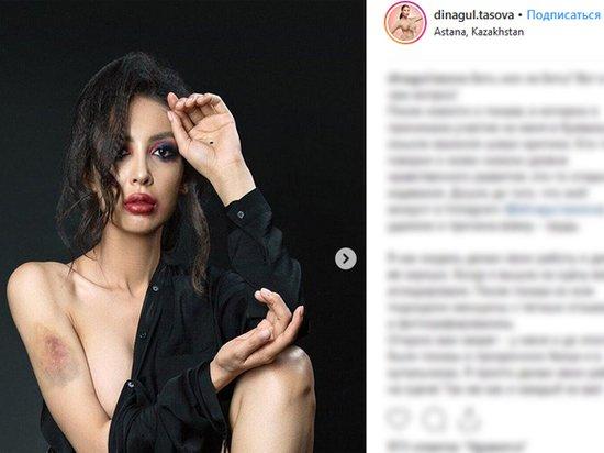 В Казахстане модель избили из-за откровенного наряда