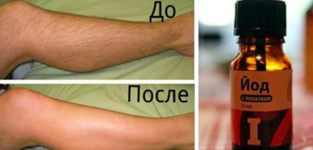 Как с помощью йода избавиться от нежелательных волос на теле