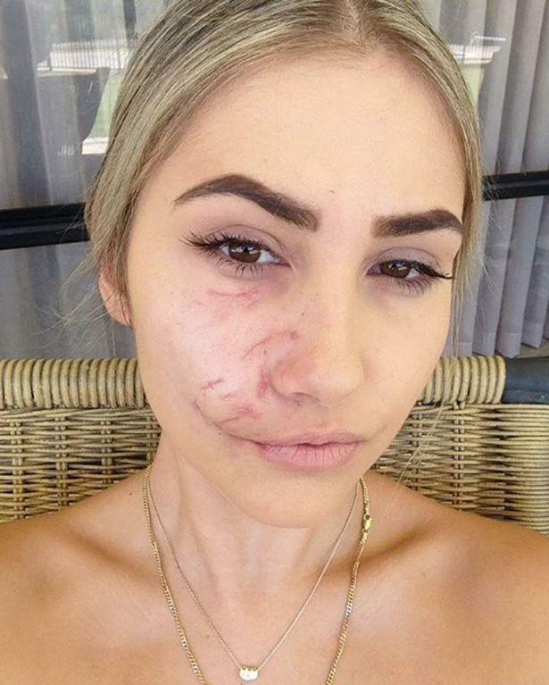 Model Suzel Mackintosh scarred for life after dog attack
