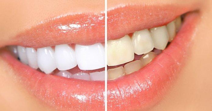 Как отбелить зубы народными средствами