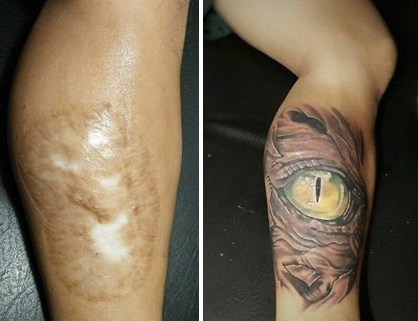 20 People Who Brilliantly Turn Their Scars Into Tattoos