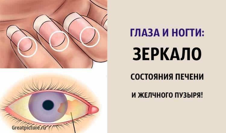 Глаза и ногти: зеркало состояния печени и желчного пузыря