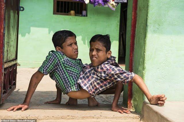 Сиамские близнецы не пожалели об отказе от разделения