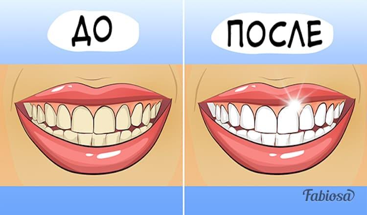Эти 4 средства с легкостью отбелят ваши зубы.