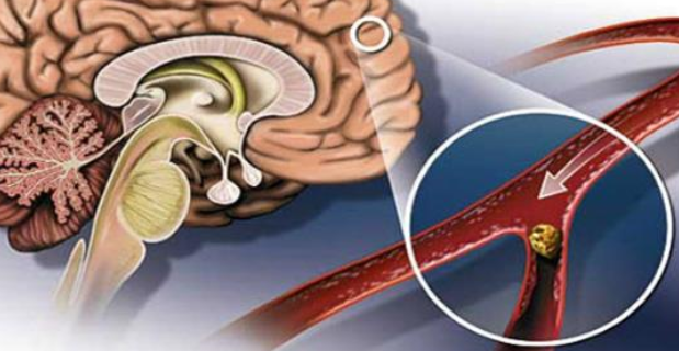Эти целебные средства быстро очистят сосуды головного мозга! Доказано учеными!
