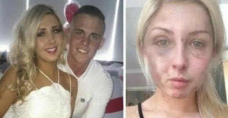 19-летний парень жестоко избивал свою подругу в течение нескольких часов. Но сообразительность девушки помогла ей выжить