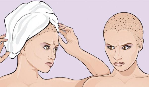 Вы наносите непоправимый вред своим волосам, заматывая их в полотенце после душа