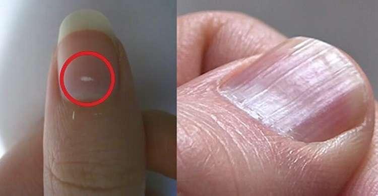 7 важных вещей, которые ногти говорят о здоровье