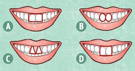 Ваша форма зубов может рассказать o Вас многое!