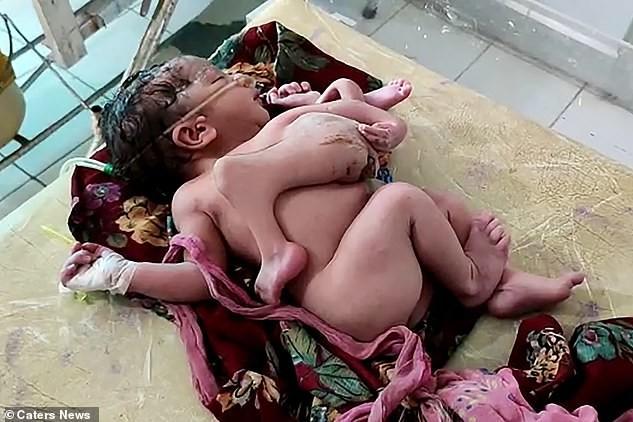 В Индии родилась девочка с четырьмя ногами и тремя руками (фото)