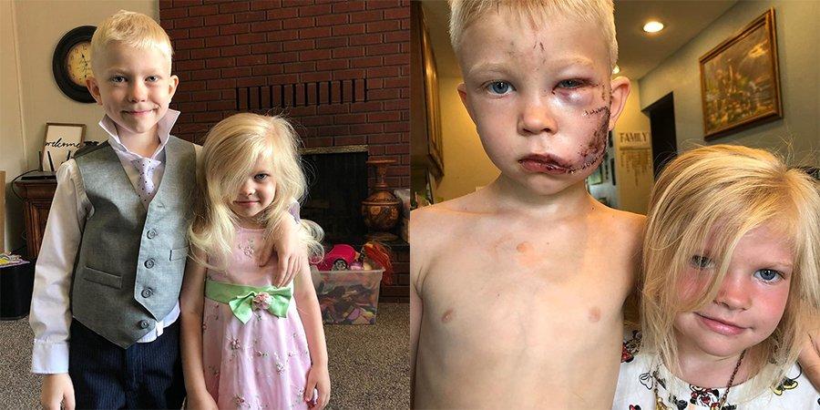 «Если кто-то должен был умереть, это должен быть я»: 6-летний мальчик спас сестренку от собаки