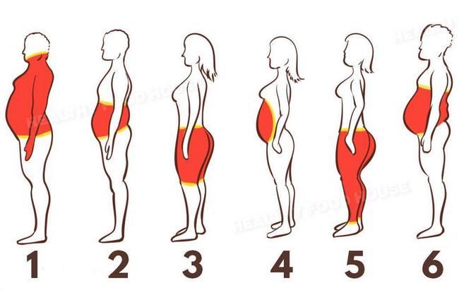 Шесть типов ожирения: как справиться с каждым из них