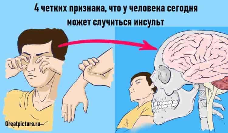 4 четких признака что у человека сегодня может случиться инсульт