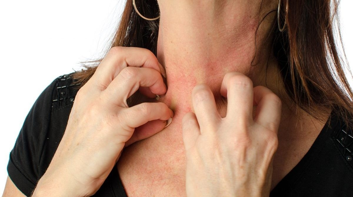 Красные пятна на лице и теле: разбираемся, после чего они могут появиться