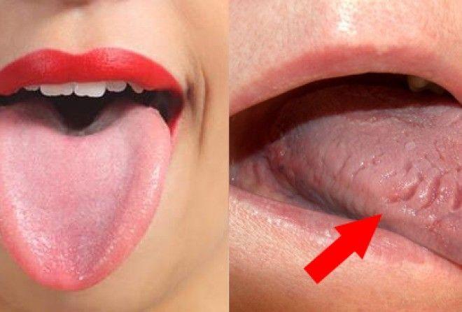 Если во время чистки зубов вы видите на своем языке нечто странное — не игнорируйте! Это может быть опасно…