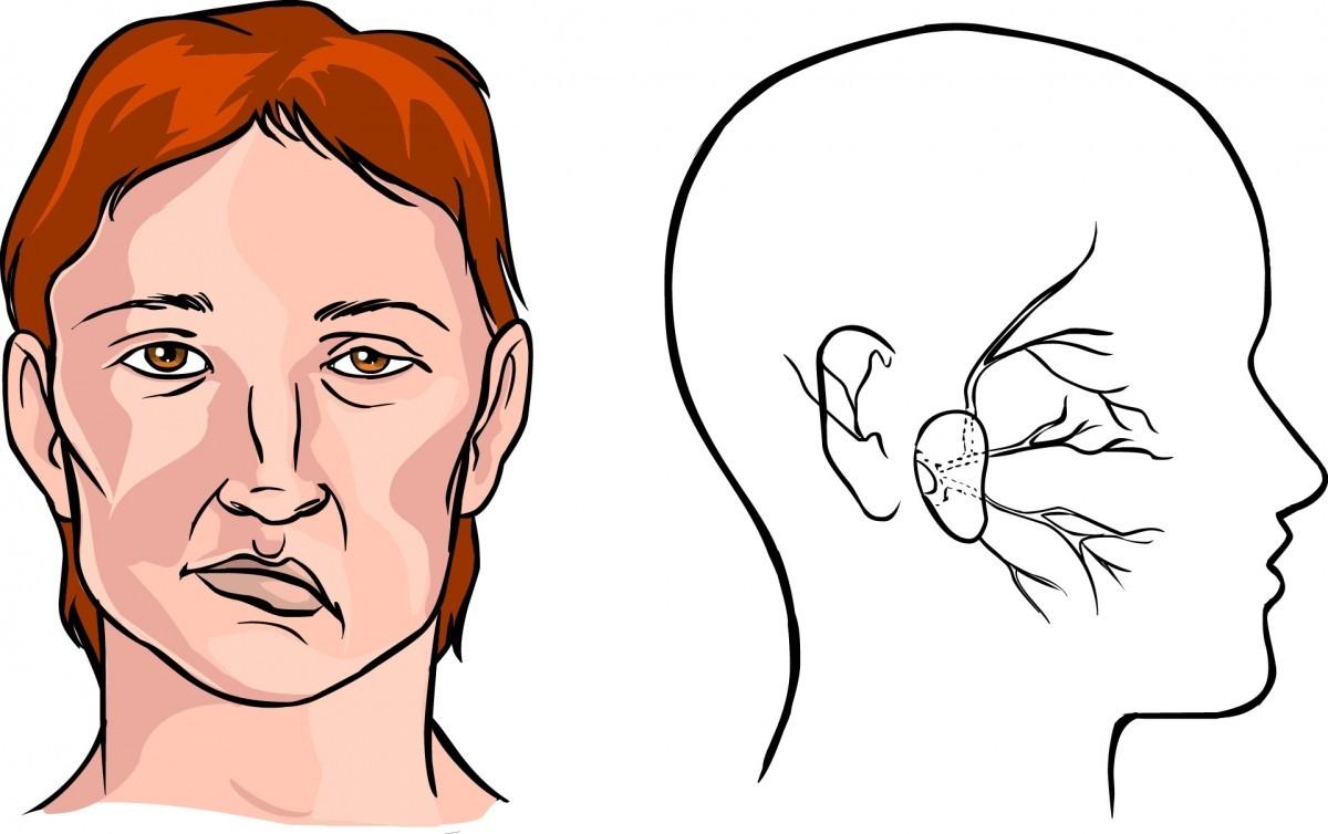Симптомы инсульта, которые появляются за несколько часов до приступа