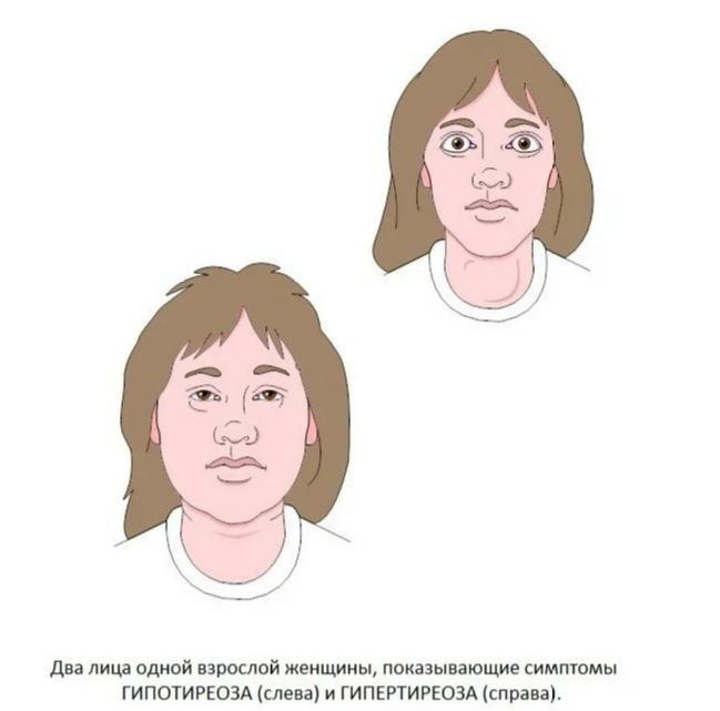Симптомы и факторы риска заболеваний щитовидной железы