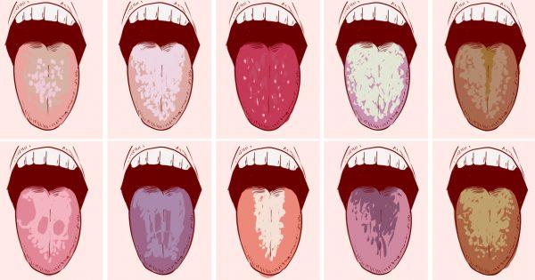 Если у тебя бывает неприятный привкус во рту по утрам, немедленно действуй!
