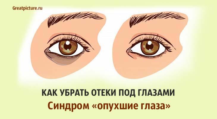 Как убрать отеки под глазами. Синдром «опухшие глаза».